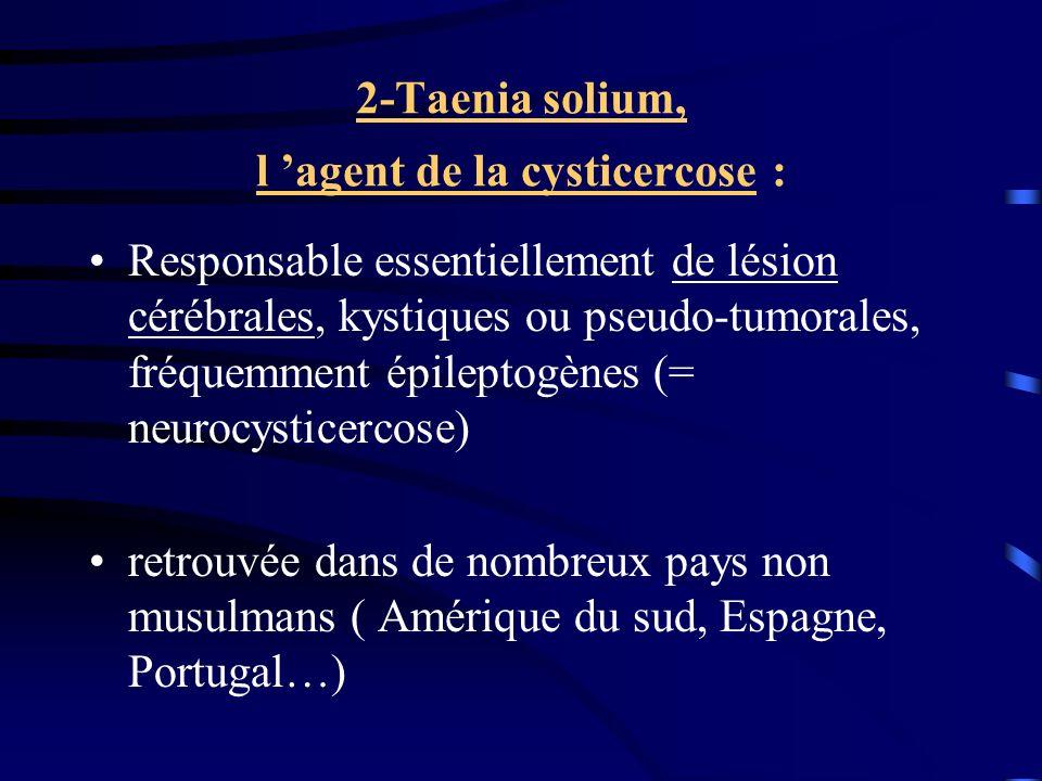 2-Taenia solium, l agent de la cysticercose : Responsable essentiellement de lésion cérébrales, kystiques ou pseudo-tumorales, fréquemment épileptogèn