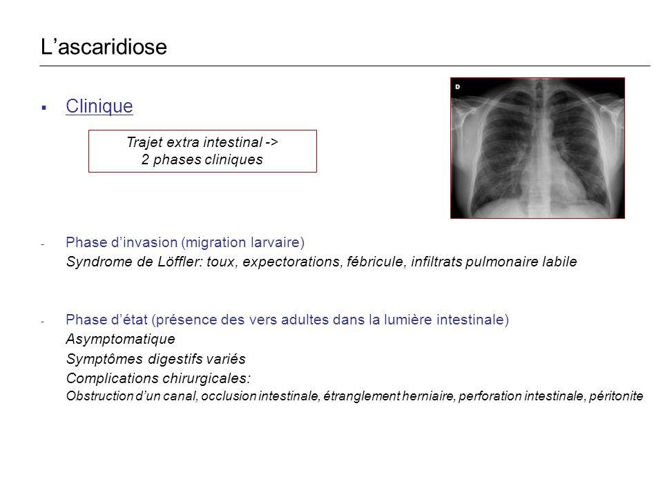 Clinique - Phase dinvasion (migration larvaire) Syndrome de Löffler: toux, expectorations, fébricule, infiltrats pulmonaire labile - Phase détat (prés