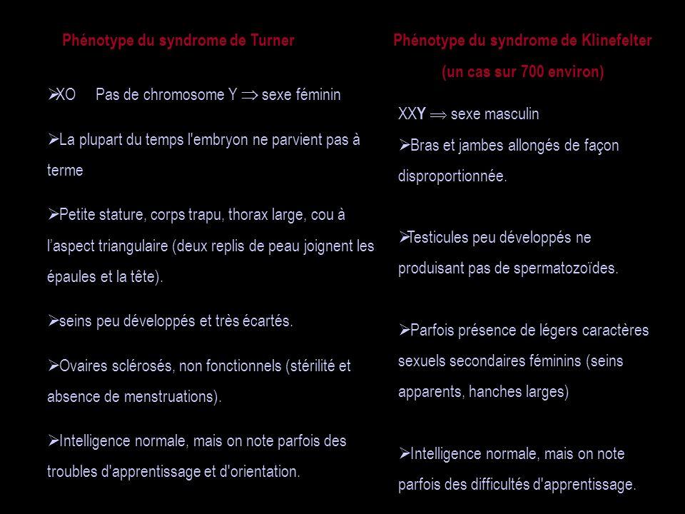 Phénotype du syndrome de Turner XO Pas de chromosome Y sexe féminin La plupart du temps l'embryon ne parvient pas à terme Petite stature, corps trapu,