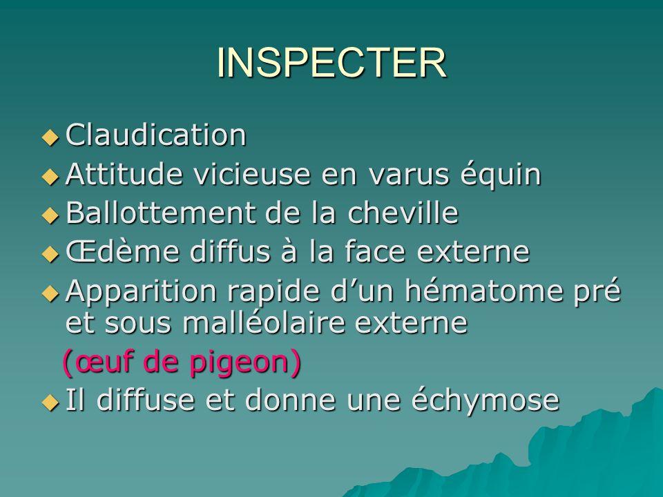 INSPECTER Claudication Claudication Attitude vicieuse en varus équin Attitude vicieuse en varus équin Ballottement de la cheville Ballottement de la c