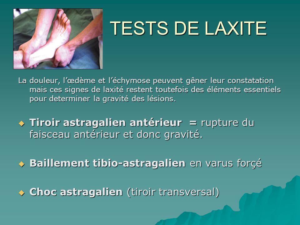 TESTS DE LAXITE TESTS DE LAXITE La douleur, lœdème et léchymose peuvent gêner leur constatation mais ces signes de laxité restent toutefois des élémen