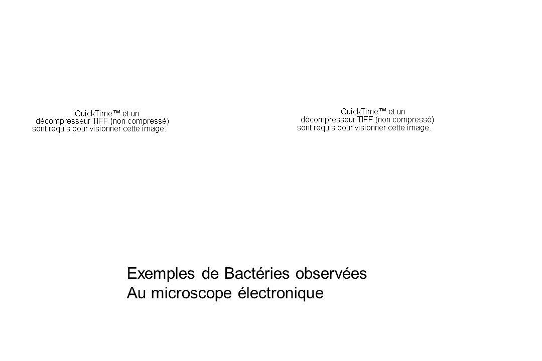 Exemples de Bactéries observées Au microscope électronique