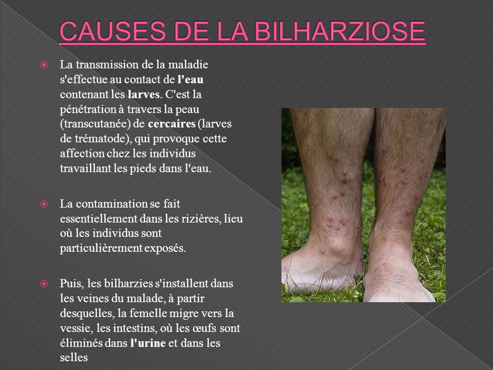 La transmission de la maladie s'effectue au contact de l'eau contenant les larves. C'est la pénétration à travers la peau (transcutanée) de cercaires