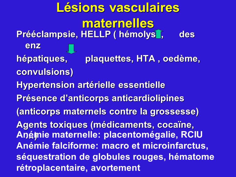 Lésions vasculaires maternelles Prééclampsie, HELLP ( hémolyse, des enz hépatiques, plaquettes, HTA, oedème, convulsions) Hypertension artérielle esse