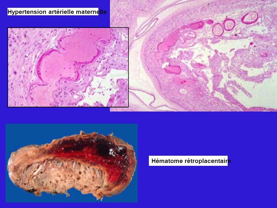 Hypertension artérielle maternelle Hématome rétroplacentaire