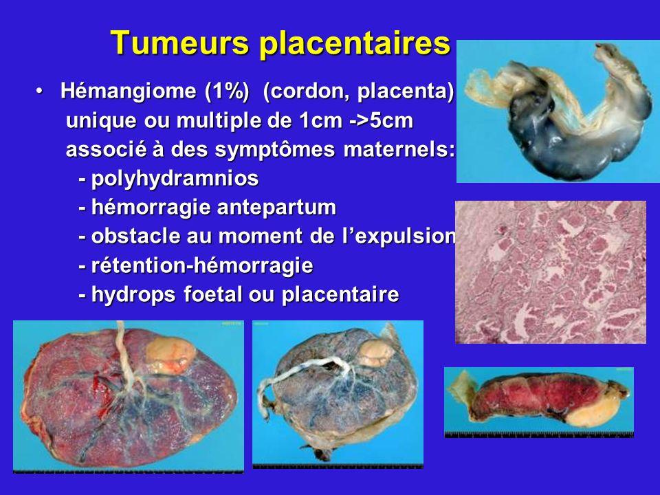 Tumeurs placentaires Hémangiome (1%) (cordon, placenta)Hémangiome (1%) (cordon, placenta) unique ou multiple de 1cm ->5cm unique ou multiple de 1cm ->