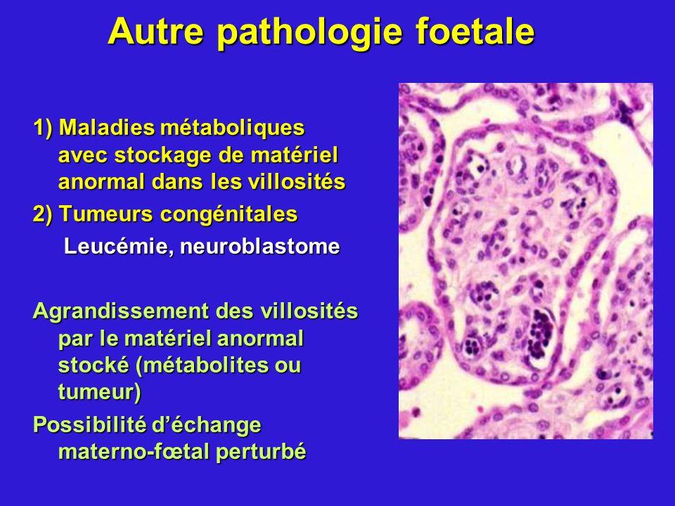 Autre pathologie foetale 1) Maladies métaboliques avec stockage de matériel anormal dans les villosités 2) Tumeurs congénitales Leucémie, neuroblastom