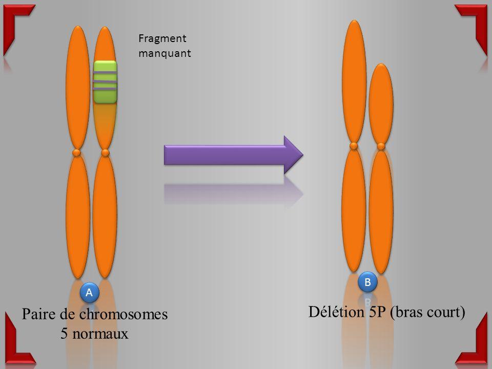 Délétion 5P (bras court) Fragment manquant Paire de chromosomes 5 normaux