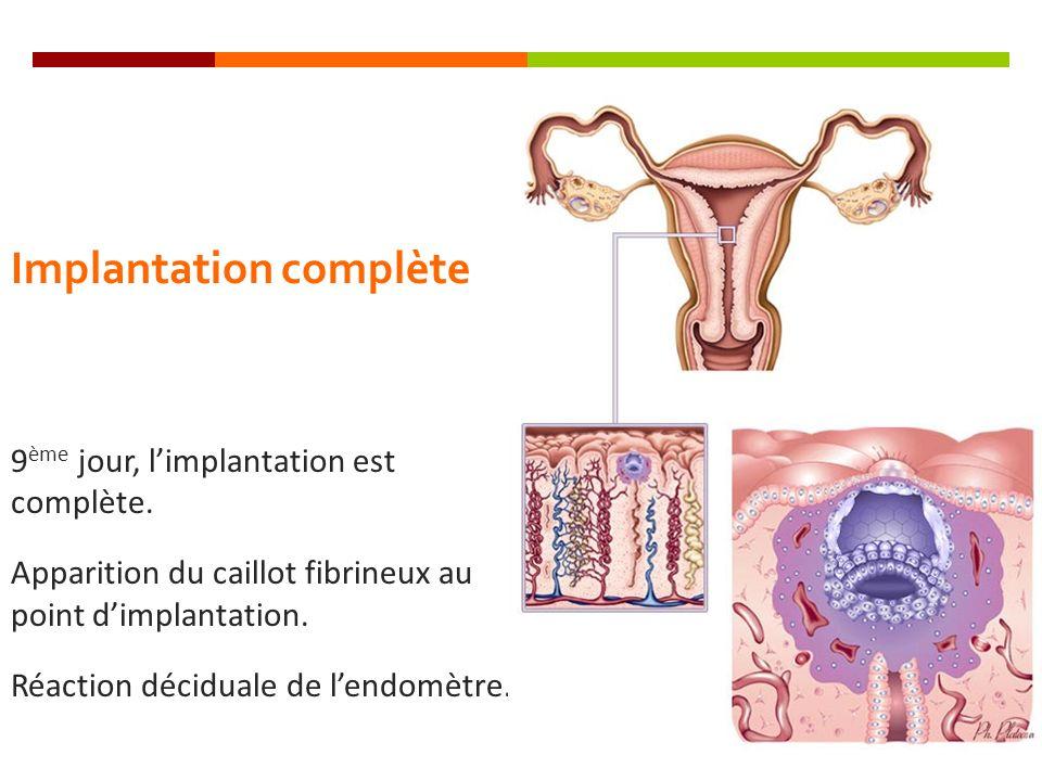Implantation complète 9 ème jour, limplantation est complète. Apparition du caillot fibrineux au point dimplantation. Réaction déciduale de lendomètre