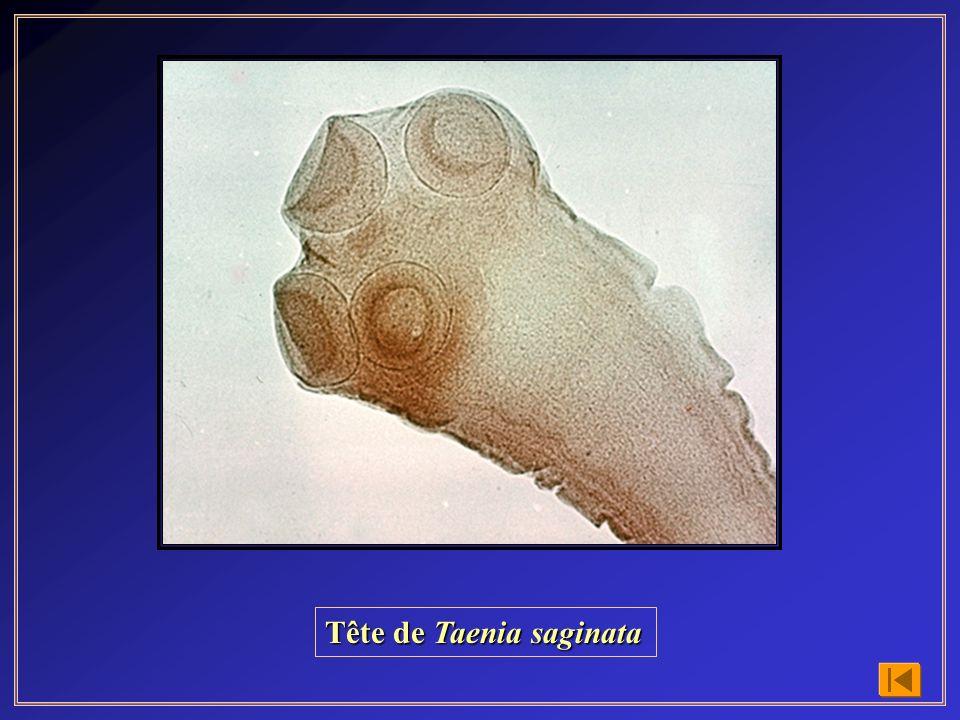Tête de Taenia saginata