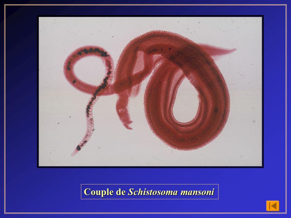 Cycle évolutif de Diphyllobothrium latum