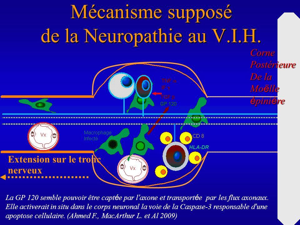 Mécanisme supposé de la Neuropathie au V.I.H. Extension sur le tronc nerveux CornePostérieure De la Mo ë lle é pini è re La GP 120 semble pouvoir être
