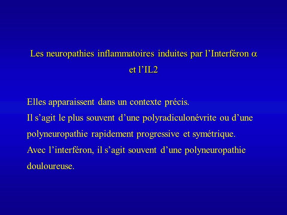 Les neuropathies inflammatoires induites par lInterféron et lIL2 Elles apparaissent dans un contexte précis. Il sagit le plus souvent dune polyradicul