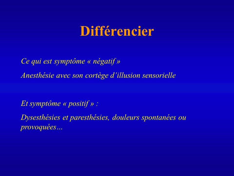 Différencier Ce qui est symptôme « négatif » Anesthésie avec son cortège dillusion sensorielle Et symptôme « positif » : Dysesthésies et paresthésies,