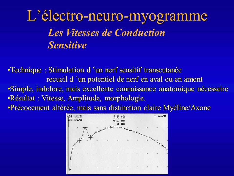 Lélectro-neuro-myogramme Les Vitesses de Conduction Sensitive Technique : Stimulation d un nerf sensitif transcutanée recueil d un potentiel de nerf e