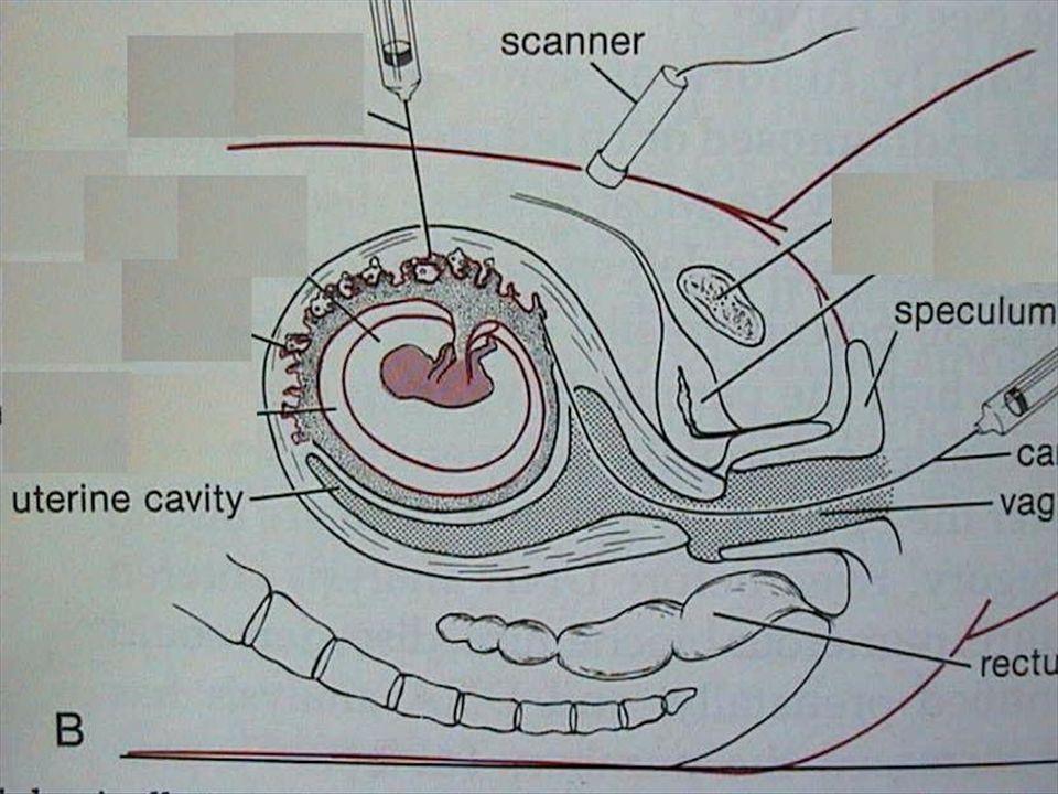 Découverte d une malformation Risque d anomalie chromosomique Malformationisoléeassociée cerveau6%29% cardiopathie15%47% fente labiale10%38% hernie diaphragm.11%26% anomalies rénales4%23%