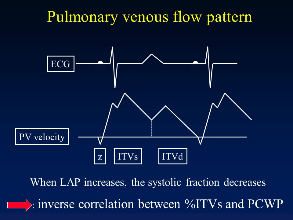 ITVsz ECG ITVd Pulmonary venous flow pattern PV velocity When LAP increases, the systolic fraction decreases : inverse correlation between %ITVs and P
