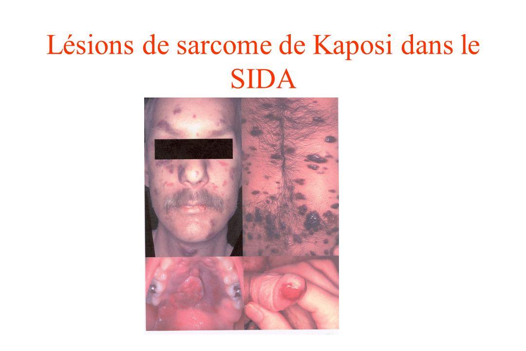 Lésions de sarcome de Kaposi dans le SIDA