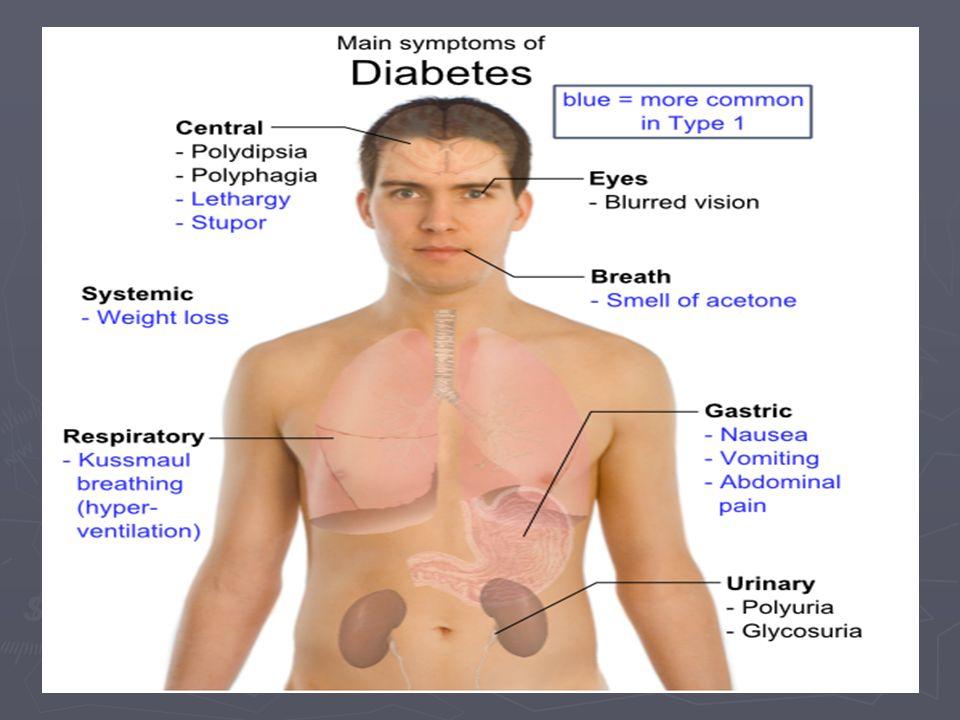 Historique des méthodes diagnostiques (1) Toutes les méthodes modernes sont basées sur la détermination du glucose, soit sang, plasma ou sérum - soit à jeun, random ou par test de charge Toutes les méthodes modernes sont basées sur la détermination du glucose, soit sang, plasma ou sérum - soit à jeun, random ou par test de charge Diabète de type 1 : présentation clinique généralement suffisamment caractéristique Diabète de type 1 : présentation clinique généralement suffisamment caractéristique Diabète de type 2 : développement insidieux, sans symptômes et sans séparation nette pour les glycémies entre la population diabétique et non diabétique Diabète de type 2 : développement insidieux, sans symptômes et sans séparation nette pour les glycémies entre la population diabétique et non diabétique