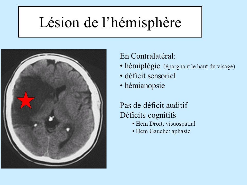 Lésion de lhémisphère En Contralatéral: hémiplégie (épargnant le haut du visage) déficit sensoriel hémianopsie Pas de déficit auditif Déficits cogniti
