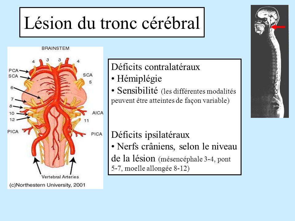 Lésion du tronc cérébral Déficits contralatéraux Hémiplégie Sensibilité (les différentes modalités peuvent être atteintes de façon variable) Déficits