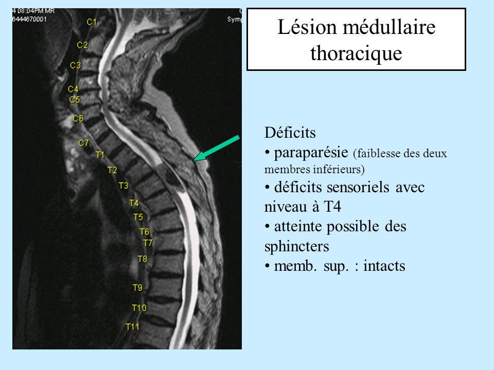 Lésion médullaire thoracique Déficits paraparésie (faiblesse des deux membres inférieurs) déficits sensoriels avec niveau à T4 atteinte possible des s