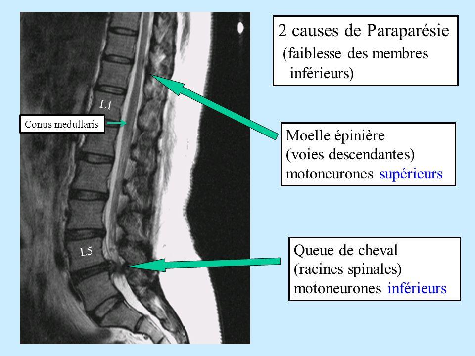 2 causes de Paraparésie (faiblesse des membres inférieurs) Moelle épinière (voies descendantes) motoneurones supérieurs Queue de cheval (racines spina