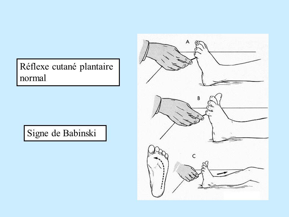 Réflexe cutané plantaire normal Signe de Babinski