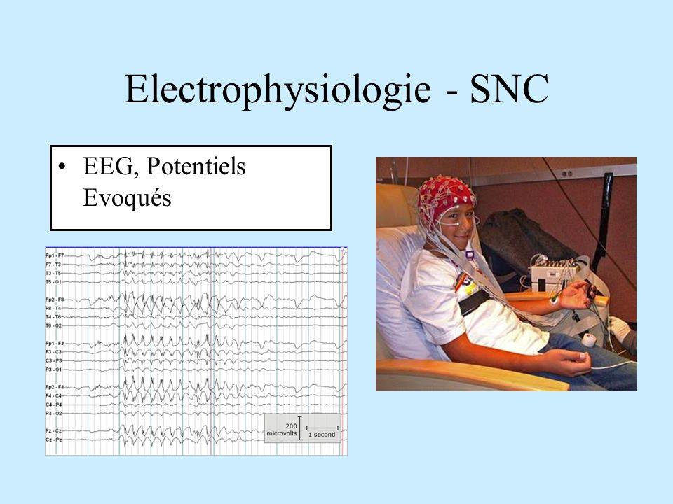 Electrophysiologie - SNC EEG, Potentiels Evoqués