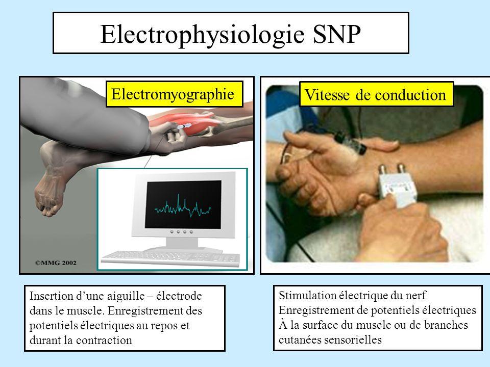Electrophysiologie SNP Vitesse de conduction Electromyographie Insertion dune aiguille – électrode dans le muscle. Enregistrement des potentiels élect