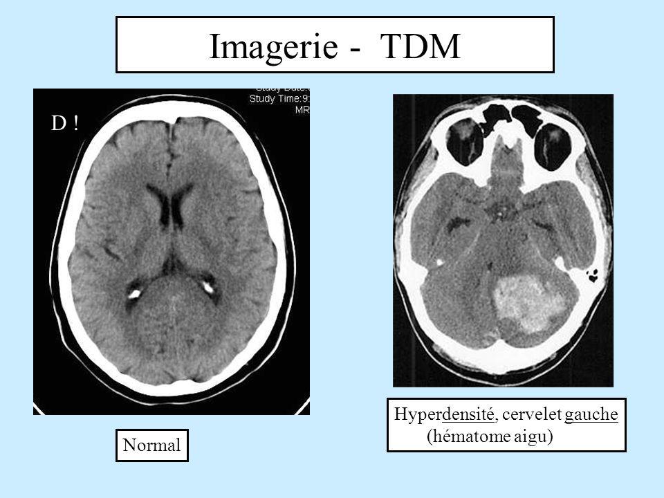 Imagerie - TDM Normal Hyperdensité, cervelet gauche (hématome aigu) D !