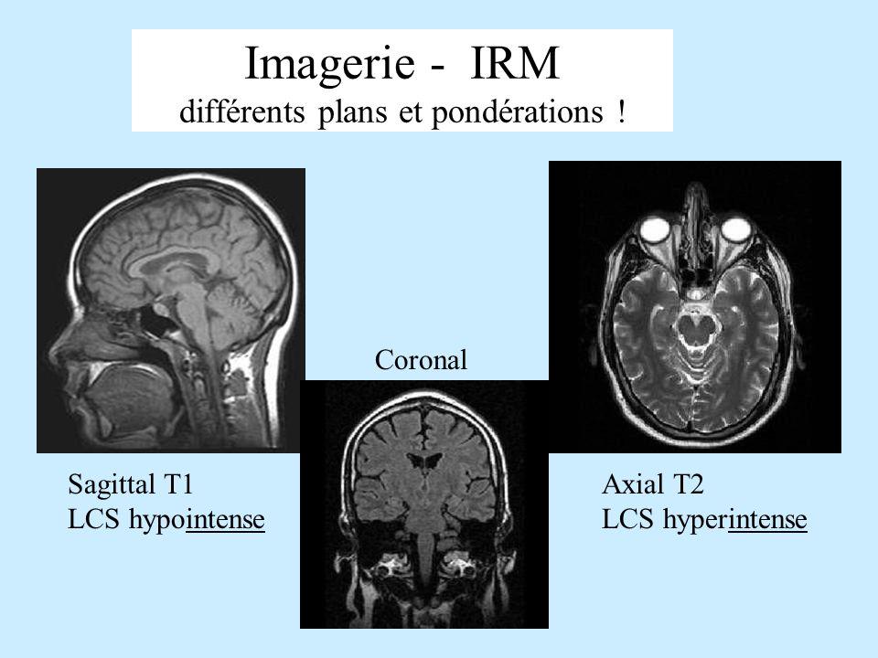 Imagerie - IRM différents plans et pondérations ! Sagittal T1 LCS hypointense Coronal Axial T2 LCS hyperintense