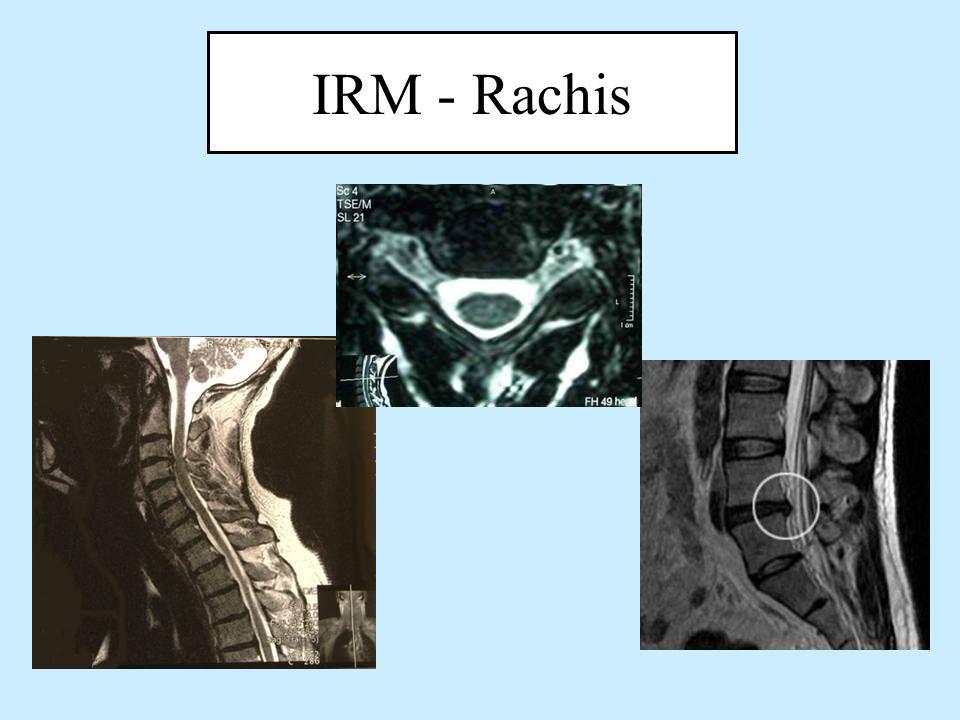 IRM - Rachis