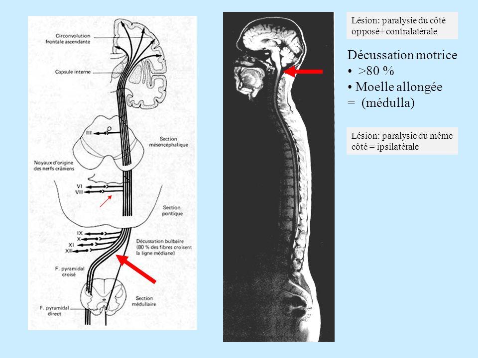 Décussation motrice >80 % Moelle allongée = (médulla) Lésion: paralysie du côté opposé+ contralatérale Lésion: paralysie du même côté = ipsilatérale