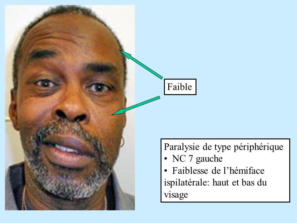 Paralysie de type central (AVC lobe frontal droit) faiblesse relative to côté inférieur gauche du visage le mouvement du front est épargné Normal Faible