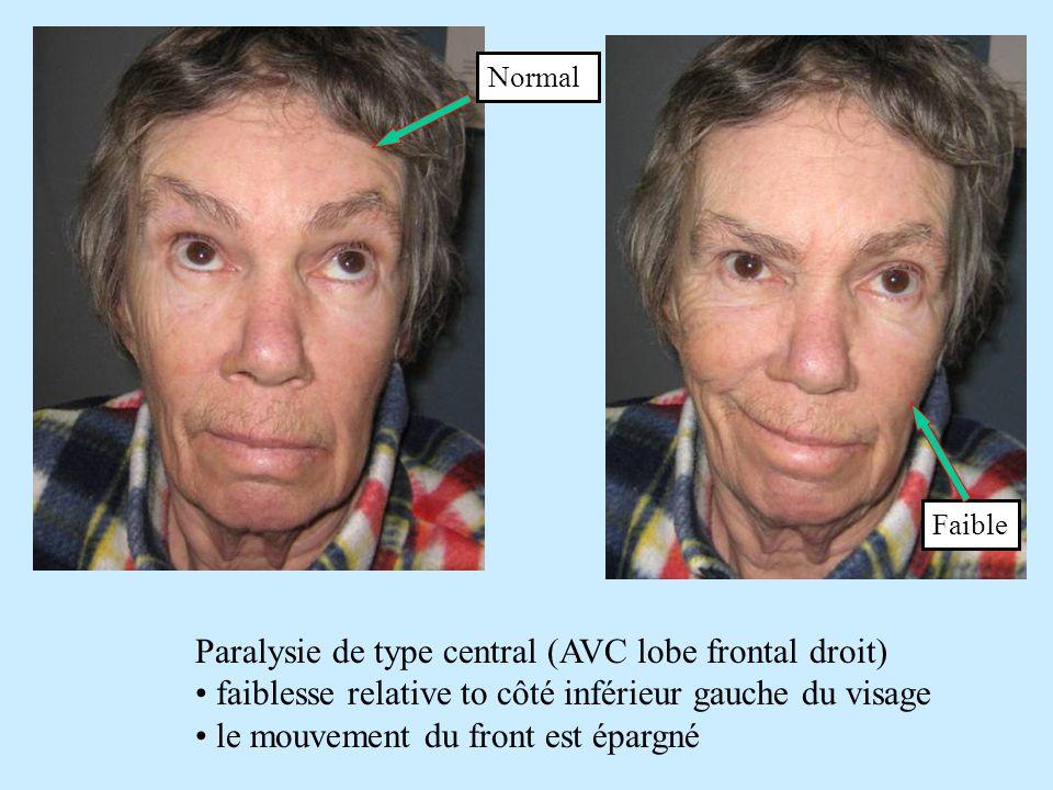 Paralysie de type central (AVC lobe frontal droit) faiblesse relative to côté inférieur gauche du visage le mouvement du front est épargné Normal Faib