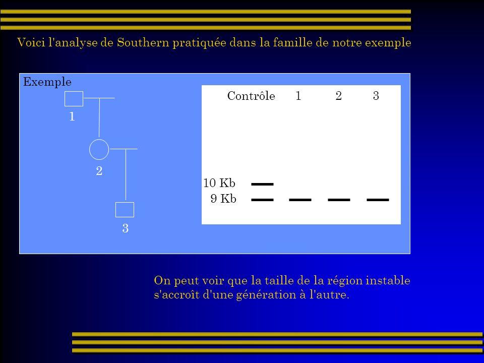 Exemple Voici l'analyse de Southern pratiquée dans la famille de notre exemple 1 2 3 Contrôle 1 2 3 9 Kb 10 Kb On peut voir que la taille de la région