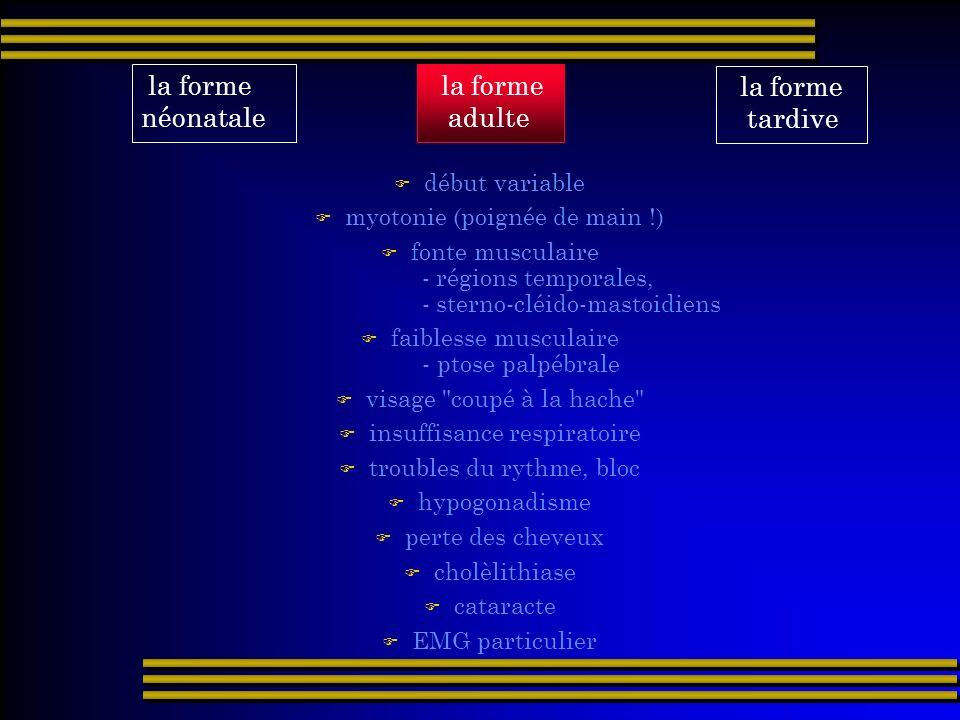 la forme tardive la forme néonatale la forme adulte début variable myotonie (poignée de main !) fonte musculaire - régions temporales, - sterno-cléido