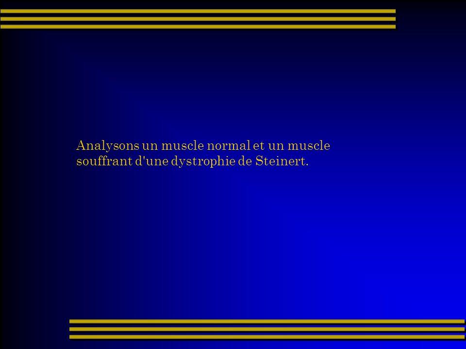 Analysons un muscle normal et un muscle souffrant d'une dystrophie de Steinert.