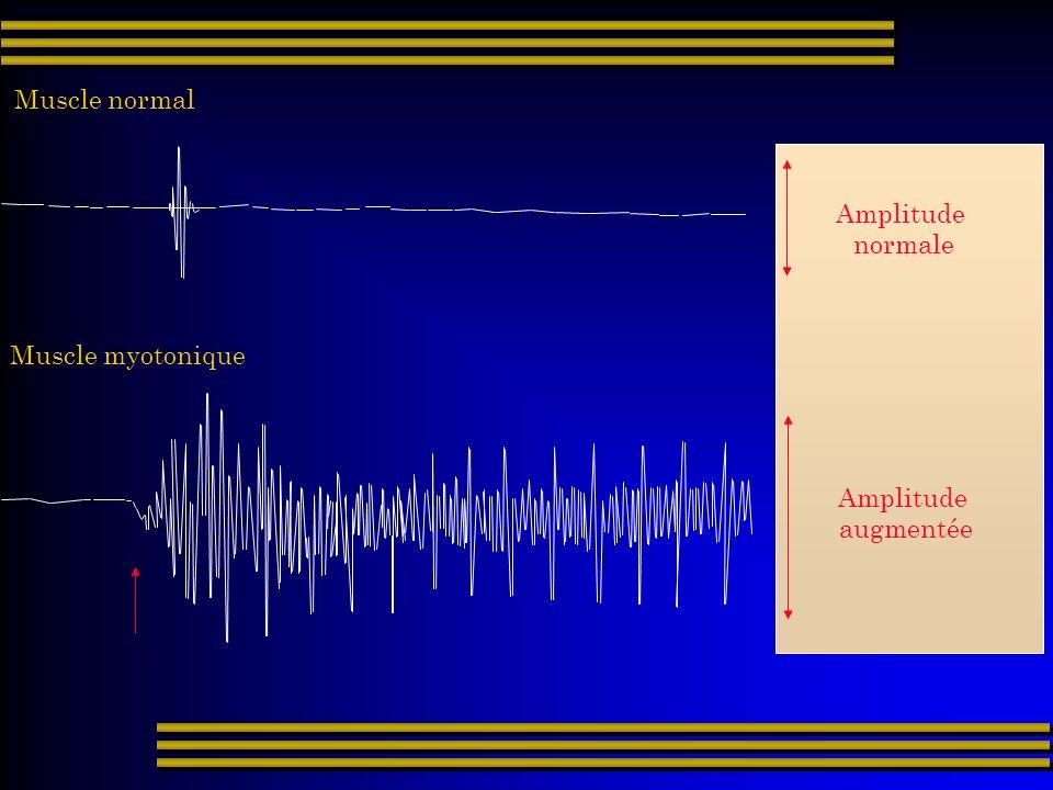 Muscle normal Muscle myotonique Amplitude augmentée Amplitude normale