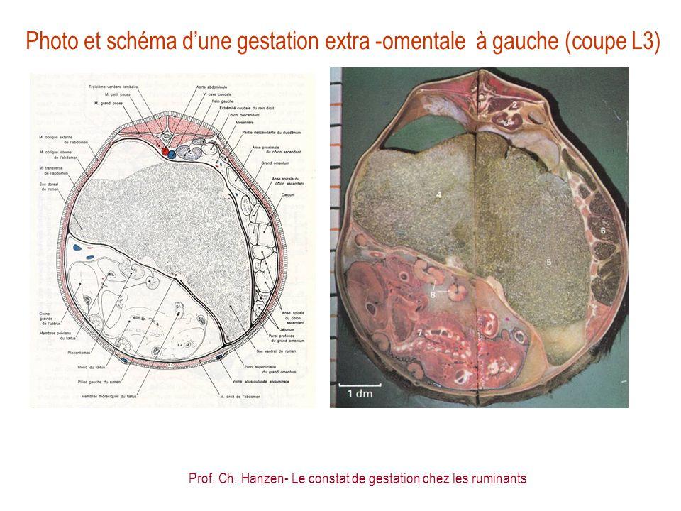 Prof. Ch. Hanzen- Le constat de gestation chez les ruminants Photo et schéma dune gestation extra -omentale à gauche (coupe L3)