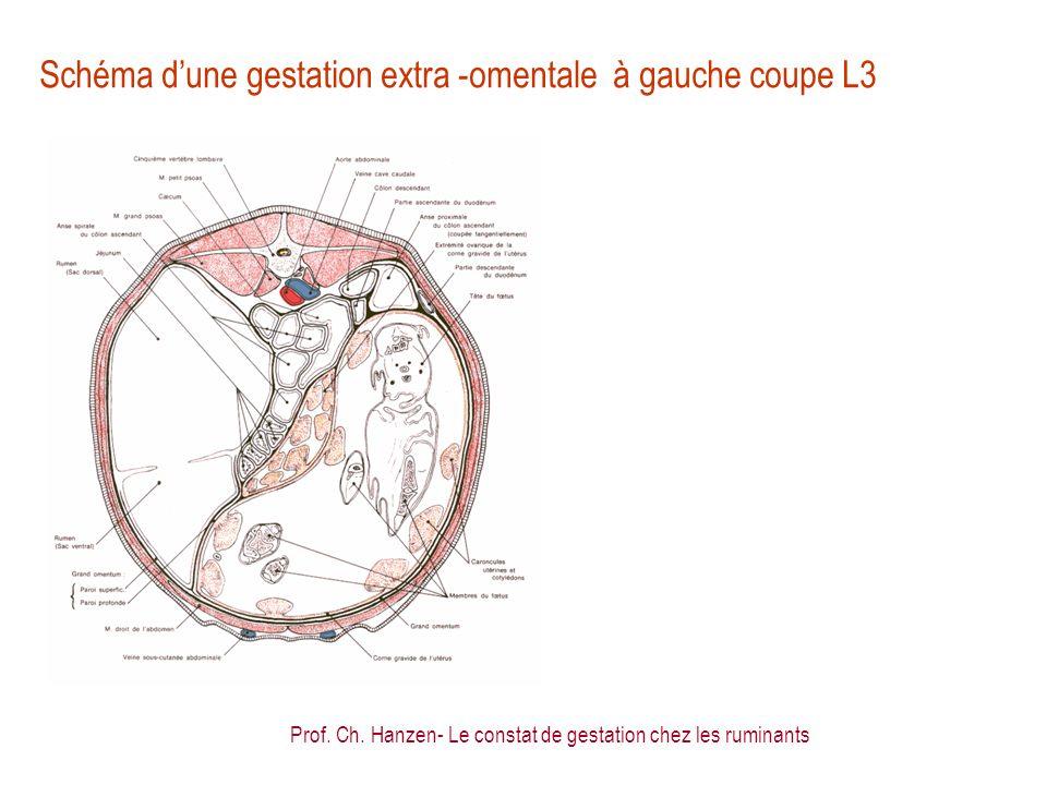 Prof. Ch. Hanzen- Le constat de gestation chez les ruminants Schéma dune gestation extra -omentale à gauche coupe L3