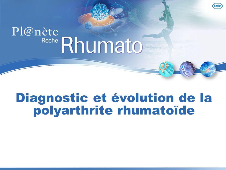 Diagnostic et évolution de la polyarthrite rhumatoïde
