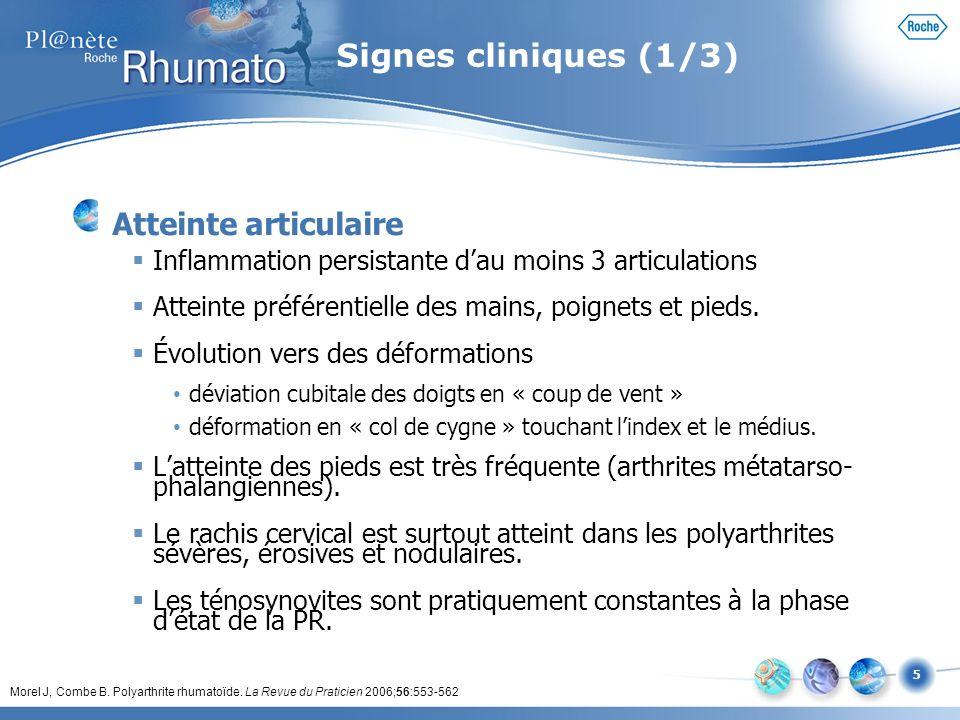 5 Signes cliniques (1/3) Atteinte articulaire Inflammation persistante dau moins 3 articulations Atteinte préférentielle des mains, poignets et pieds.