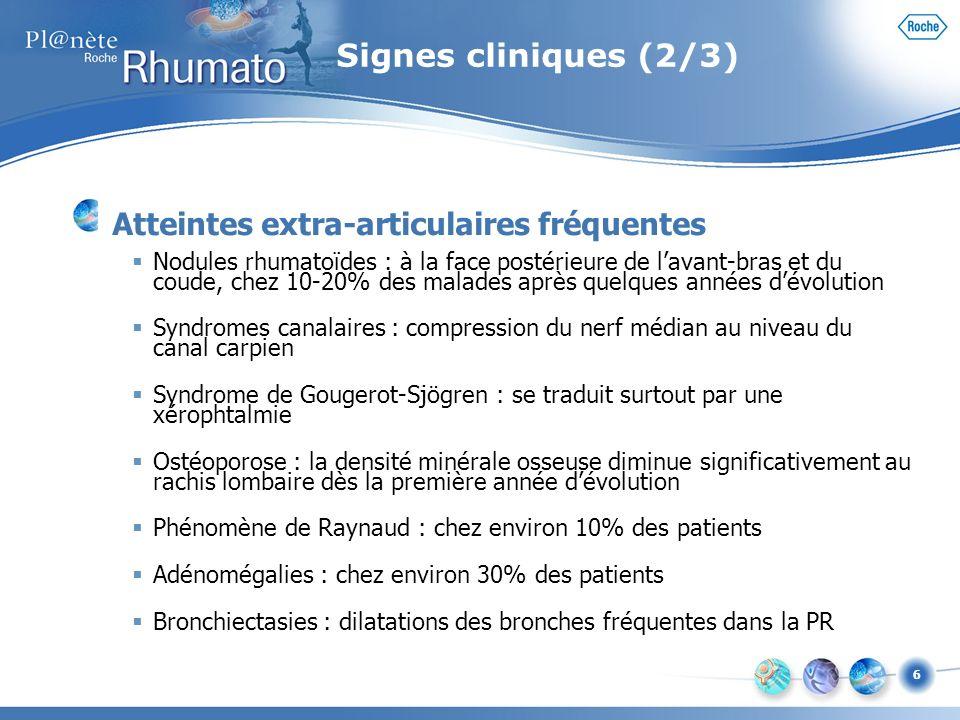 6 Signes cliniques (2/3) Atteintes extra-articulaires fréquentes Nodules rhumatoïdes : à la face postérieure de lavant-bras et du coude, chez 10-20% d