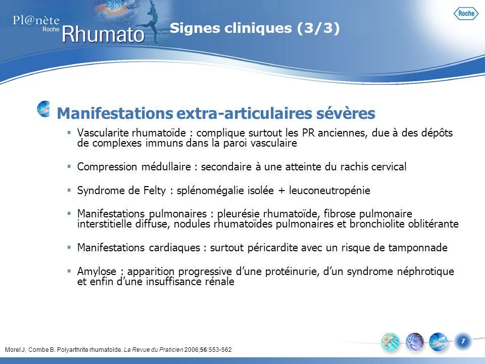 7 Signes cliniques (3/3) Manifestations extra-articulaires sévères Vascularite rhumatoïde : complique surtout les PR anciennes, due à des dépôts de co