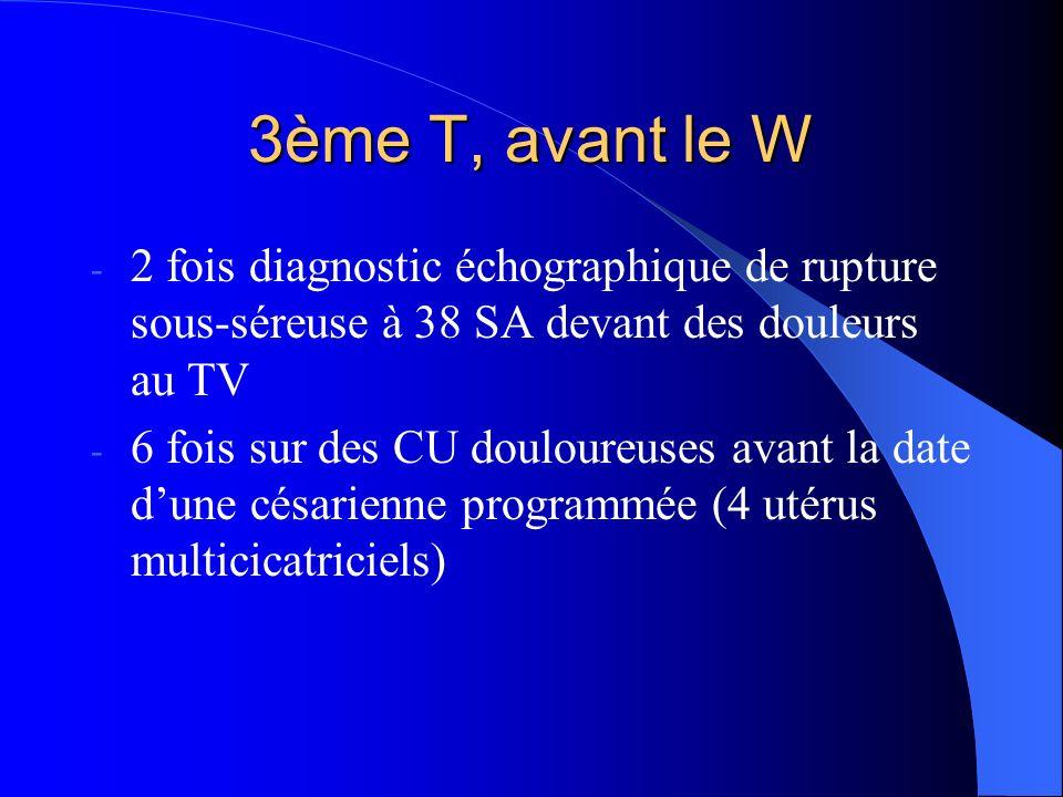 Pdt le W : à quelle dilatation ?