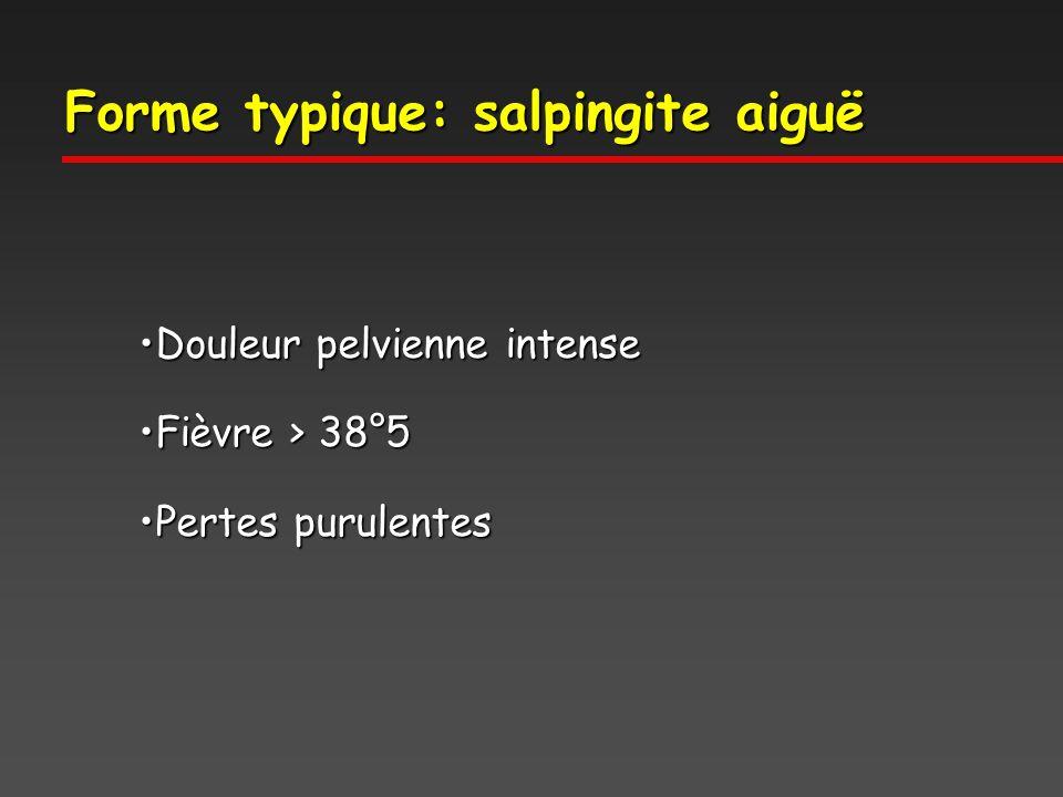 Forme typique: salpingite aiguë Douleur pelvienne intenseDouleur pelvienne intense Fièvre > 38°5Fièvre > 38°5 Pertes purulentesPertes purulentes