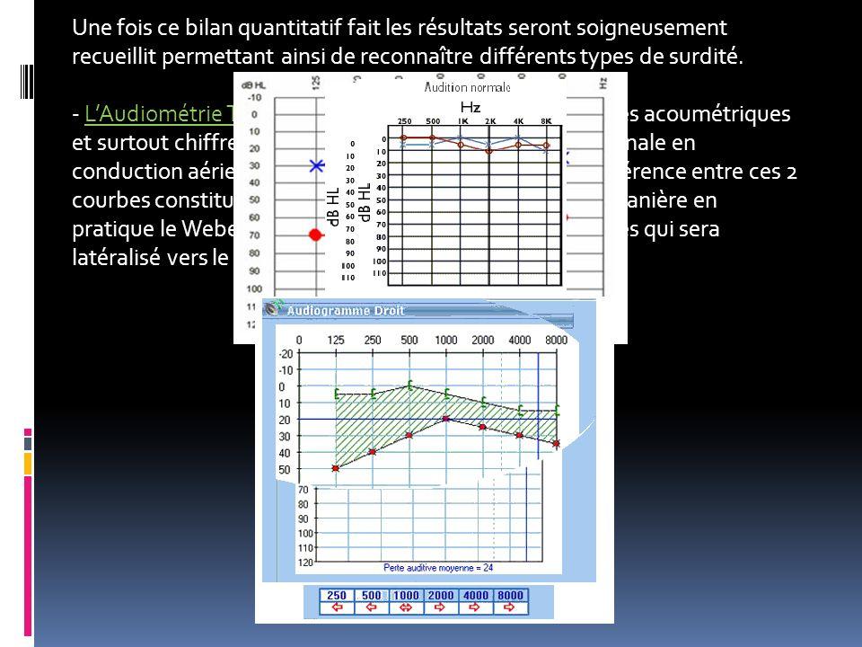 Une fois ce bilan quantitatif fait les résultats seront soigneusement recueillit permettant ainsi de reconnaître différents types de surdité. - LAudio