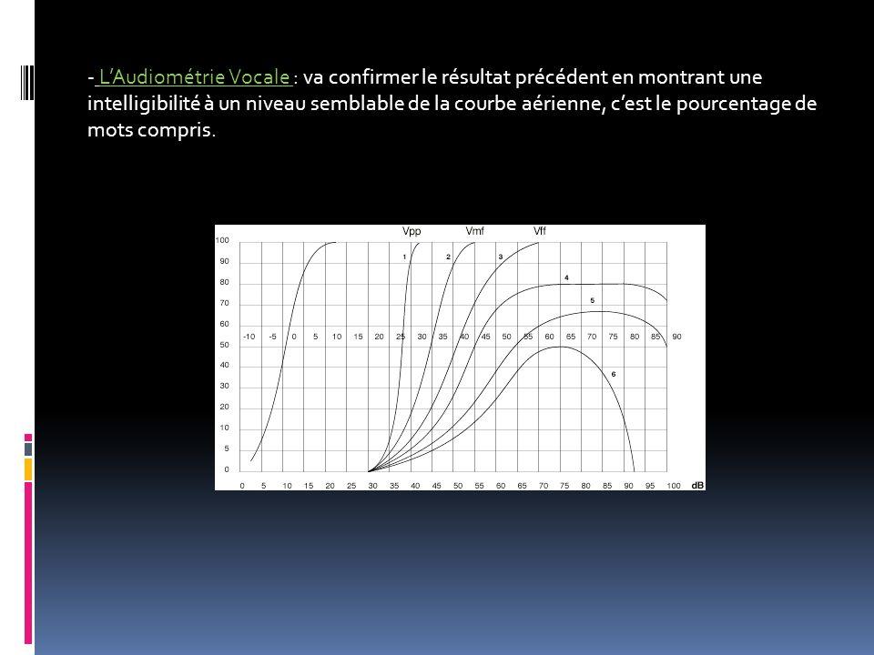 - LAudiométrie Vocale : va confirmer le résultat précédent en montrant une intelligibilité à un niveau semblable de la courbe aérienne, cest le pource